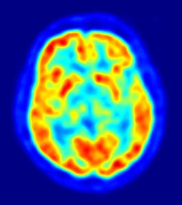 PD PET scan image.By Jens Maus (http://jens-maus.de/) - Own work. Licensed under Public Domain via Commons - https://commons.wikimedia.org/wiki/File:PET-image.jpg#/media/File:PET-image.jpg