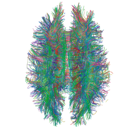 """White Matter Connections Obtained with MRI Tractography"" by Xavier Gigandet et. al. - Gigandet X, Hagmann P, Kurant M, Cammoun L, Meuli R, et al. (2008) Estimating the Confidence Level of White Matter Connections Obtained with MRI Tractography. PLoS ONE 3(12): e4006. doi:10.1371/journal.pone.0004006. Licensed under CC BY 2.5 via Commons - https://commons.wikimedia.org/wiki/File:White_Matter_Connections_Obtained_with_MRI_Tractography.png#/media/File:White_Matter_Connections_Obtained_with_MRI_Tractography.png"