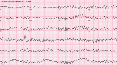 """Ventricular fibrillation"" by Jer5150 - Own work. Licensed under CC BY-SA 3.0 via Commons - https://commons.wikimedia.org/wiki/File:Ventricular_fibrillation.png#/media/File:Ventricular_fibrillation.png"