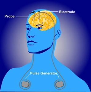 By http://www.nimh.nih.gov/health/topics/brain-stimulation-therapies/brain-stimulation-therapies.shtml [Public domain], via Wikimedia Commons
