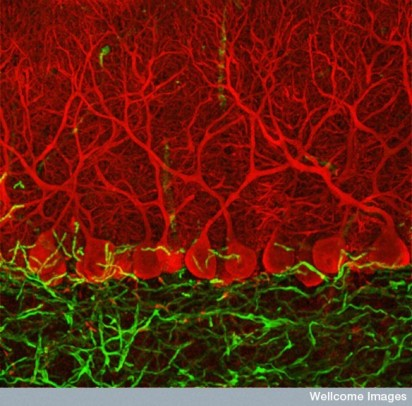 B0006224 Purkinje cells in the cerebellum. Ludovic Collin / Wellcome Images on Flikr. https://www.flickr.com/photos/wellcomeimages/6880271296