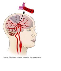 Ischemic stroke. NIH Image Gallery on Flikr. https://www.flickr.com/photos/nihgov/24964721940