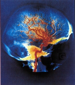 Arteries of the brain. Adrigu on Flikr https://www.flickr.com/photos/97793800@N00/7071077223