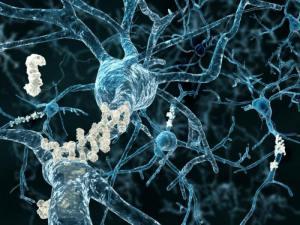 beta-amyloid-plaques. vestque on Flikr. https://www.flickr.com/photos/35049835@N00/16867428955